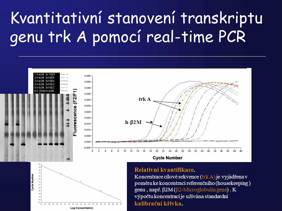 Kvantitativní stanovení transkriptu genu trk A pomocí real-time PCR