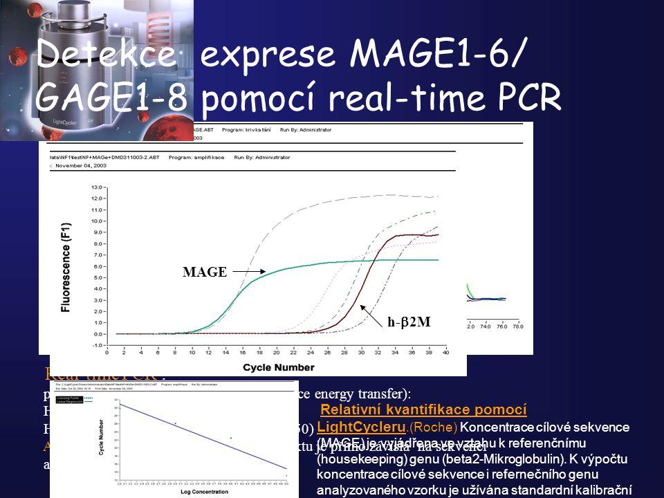 Detekce exprese MAGE1-6/ GAGE1-8 pomocí real-time PCR