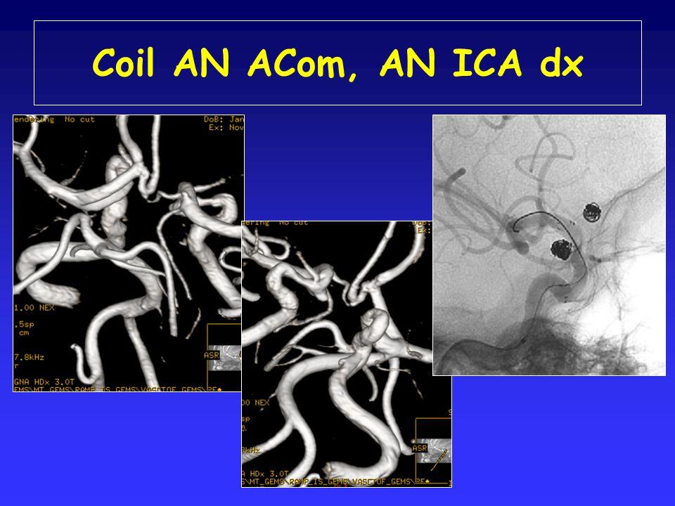 Coil AN ACom, AN ICA dx
