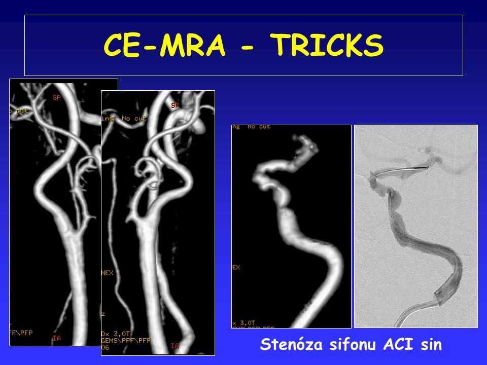 CE-MRA - TRICKS Stenóza sifonu ACI sin