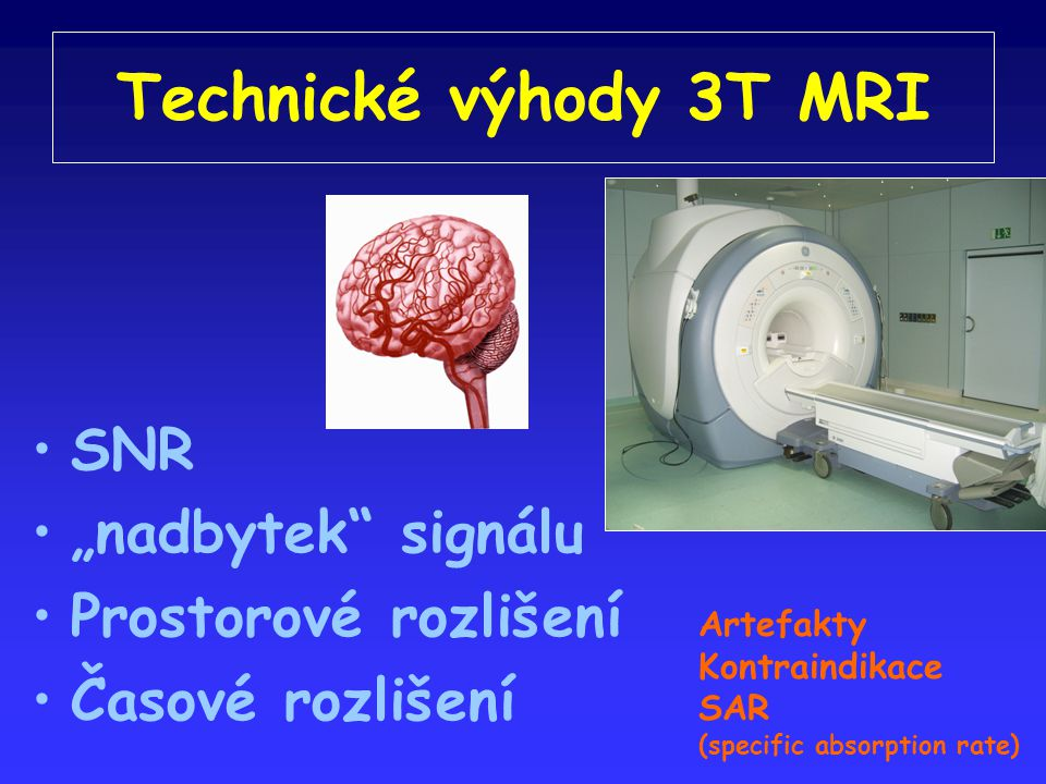 """Technické výhody 3T MRI SNR """"nadbytek signálu Prostorové rozlišení"""