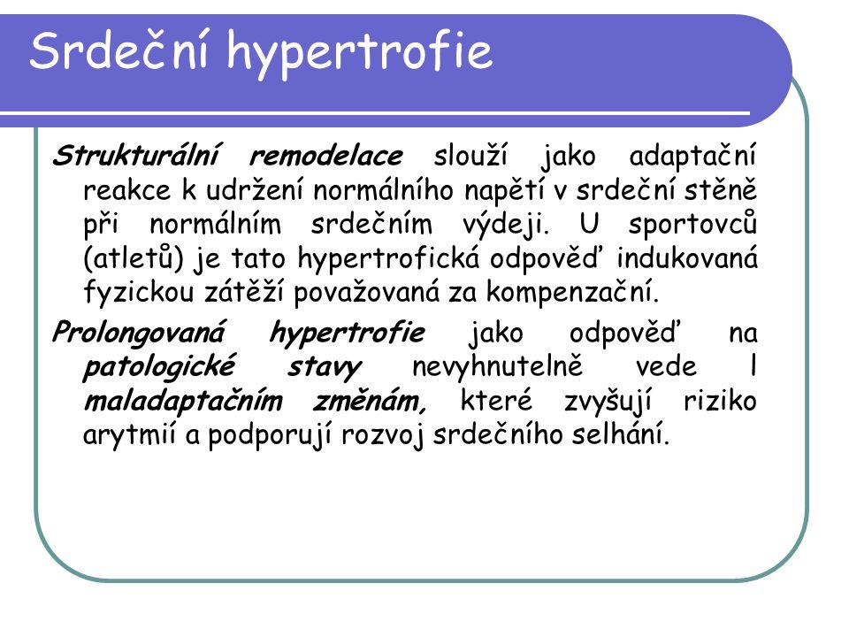Srdeční hypertrofie