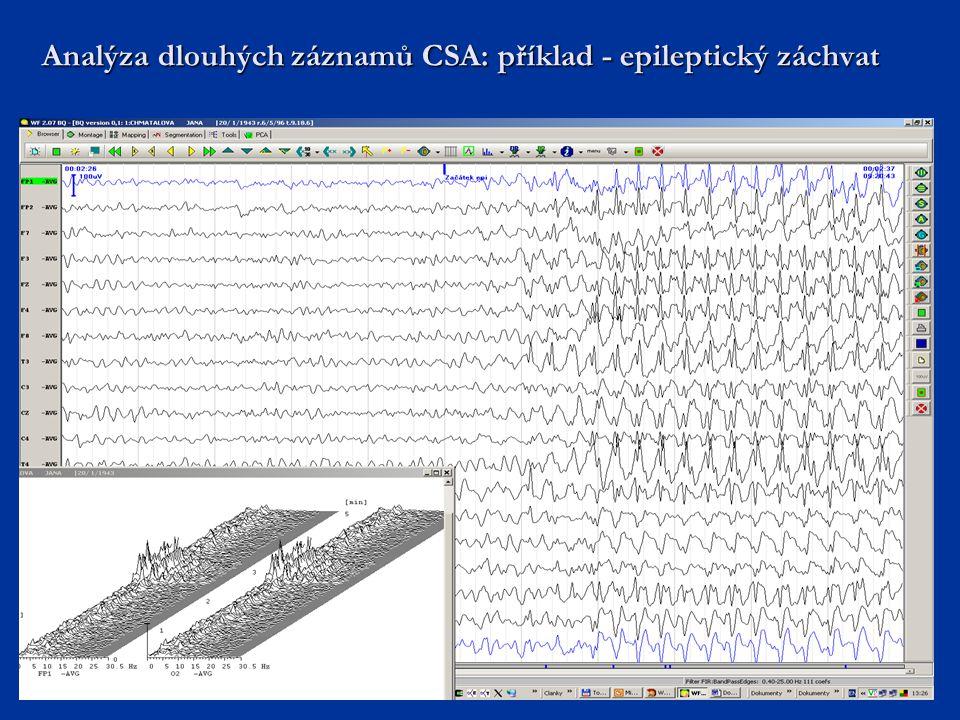Analýza dlouhých záznamů CSA: příklad - epileptický záchvat