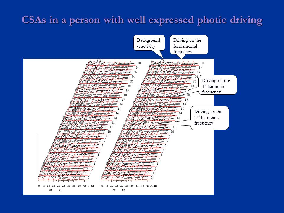 CSAs in a person with well expressed photic driving