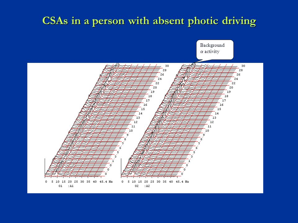 CSAs in a person with absent photic driving