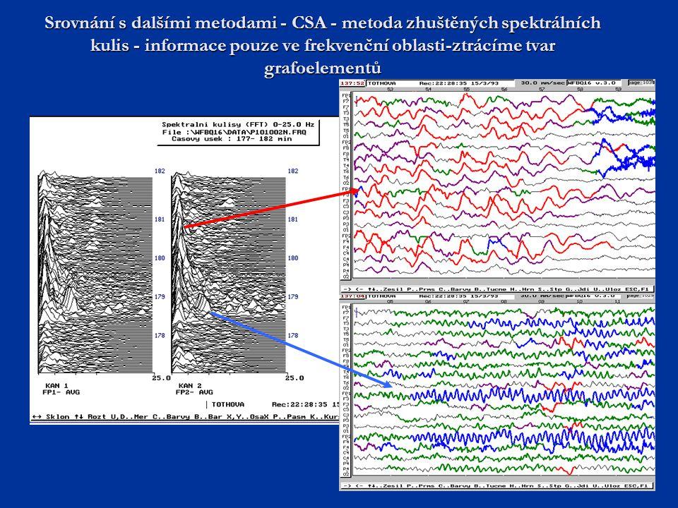 Srovnání s dalšími metodami - CSA - metoda zhuštěných spektrálních kulis - informace pouze ve frekvenční oblasti-ztrácíme tvar grafoelementů