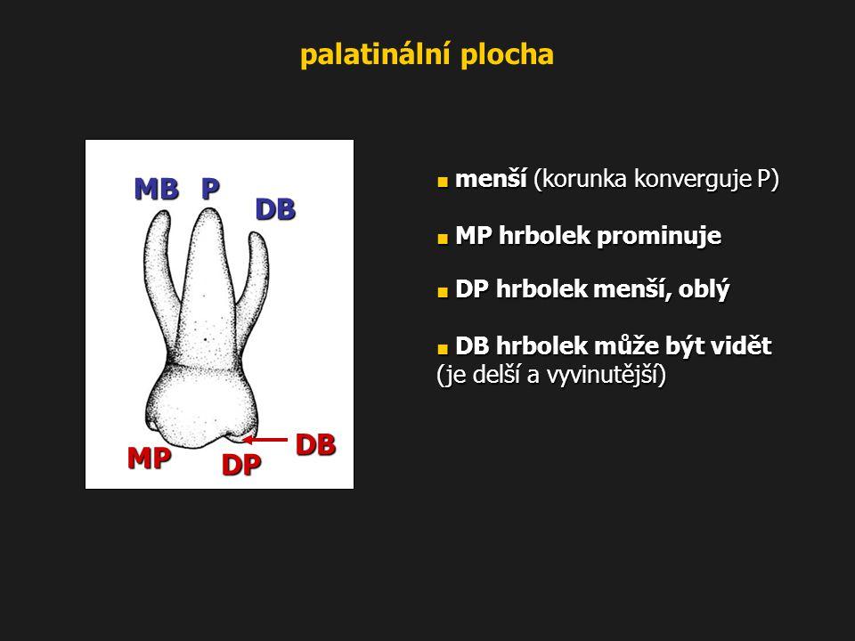 palatinální plocha DB P MB MP DP ■ menší (korunka konverguje P)