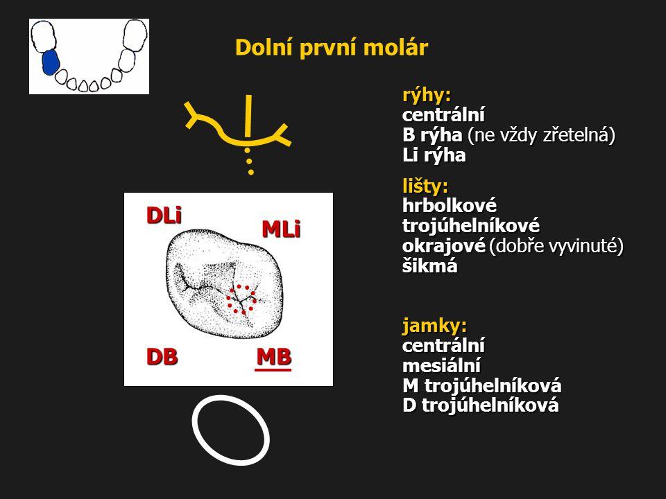 Dolní první molár MLi MB DB DLi