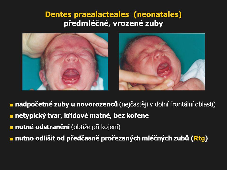 Dentes praealacteales (neonatales) předmléčné, vrozené zuby