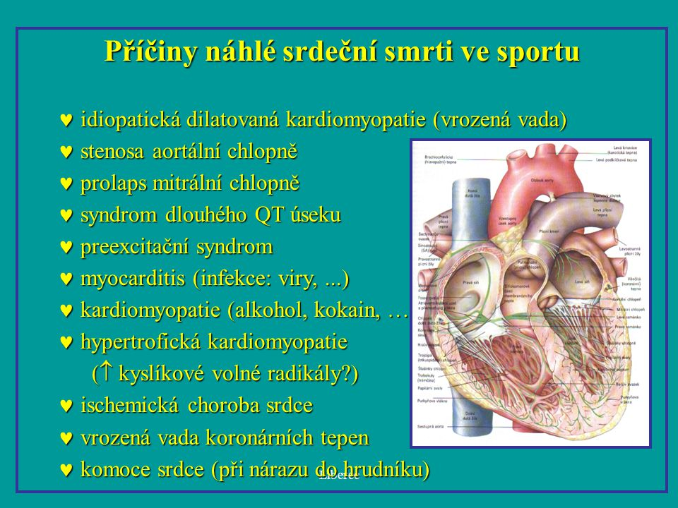 Příčiny náhlé srdeční smrti ve sportu
