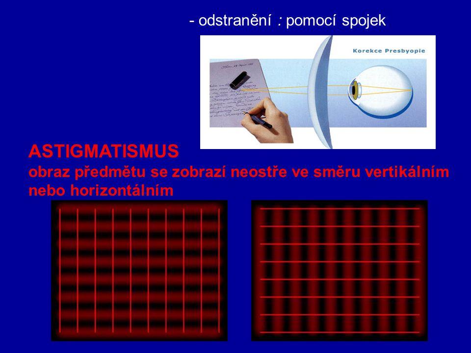 ASTIGMATISMUS - odstranění : pomocí spojek