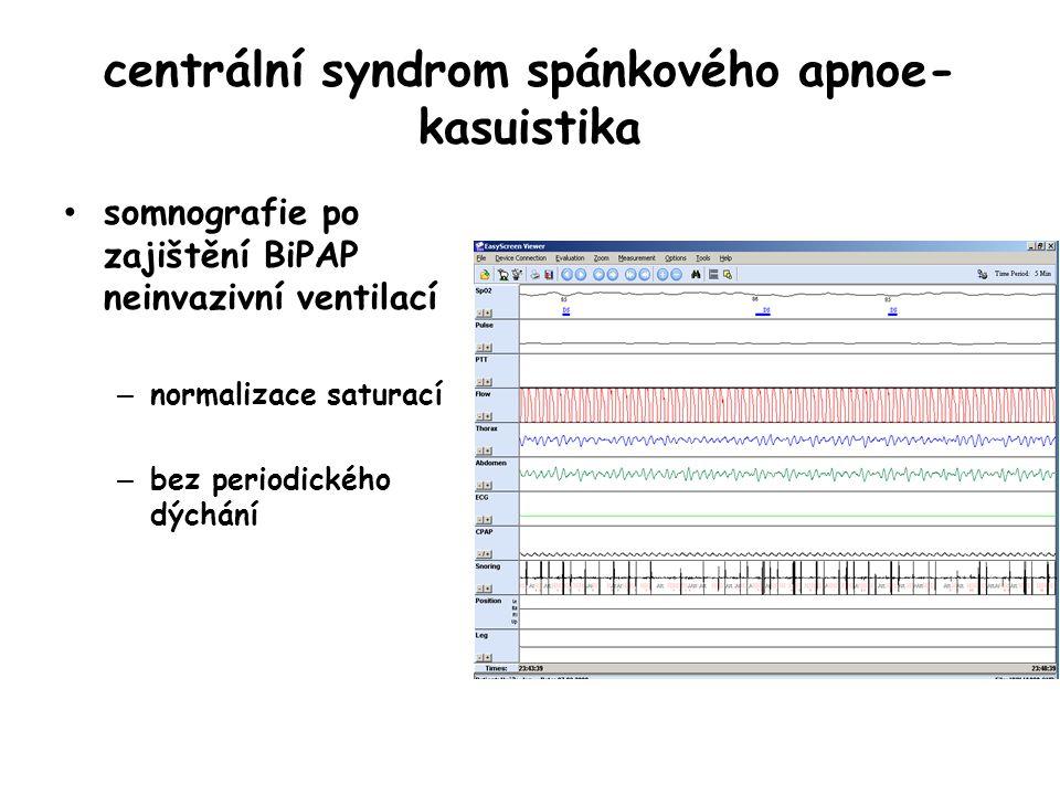 centrální syndrom spánkového apnoe- kasuistika