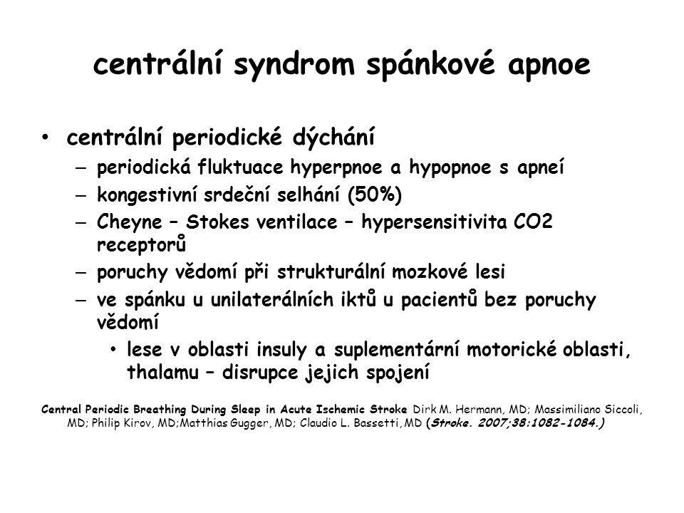 centrální syndrom spánkové apnoe
