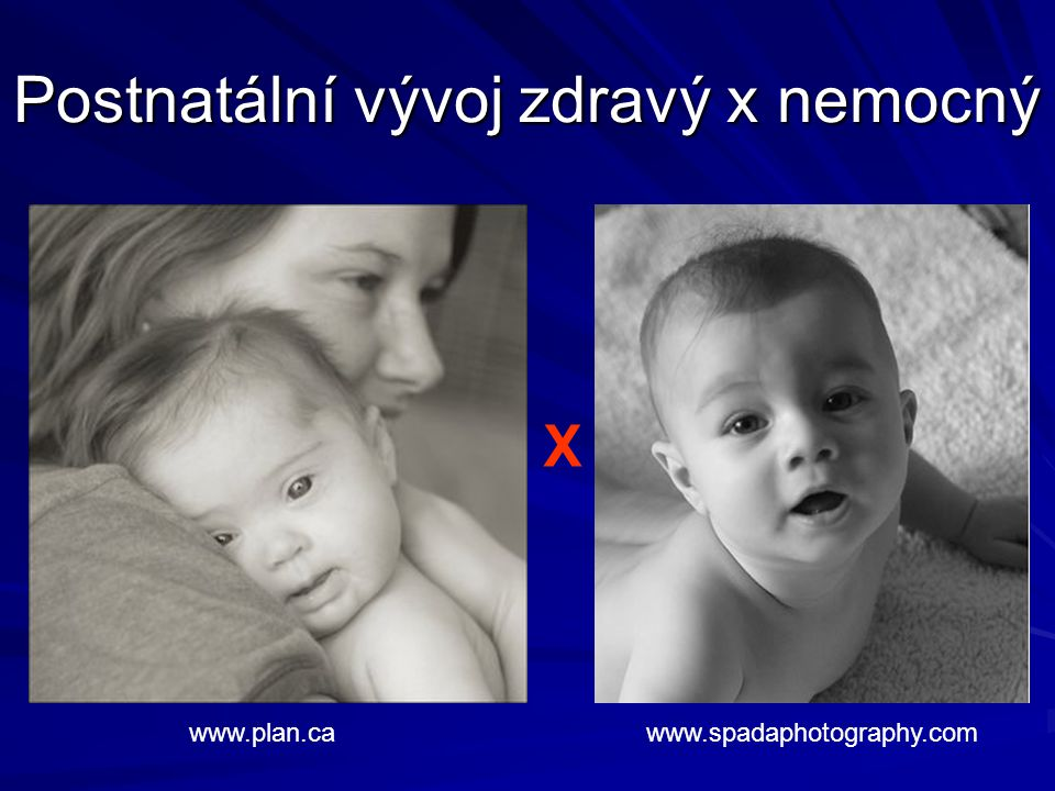 Postnatální vývoj zdravý x nemocný