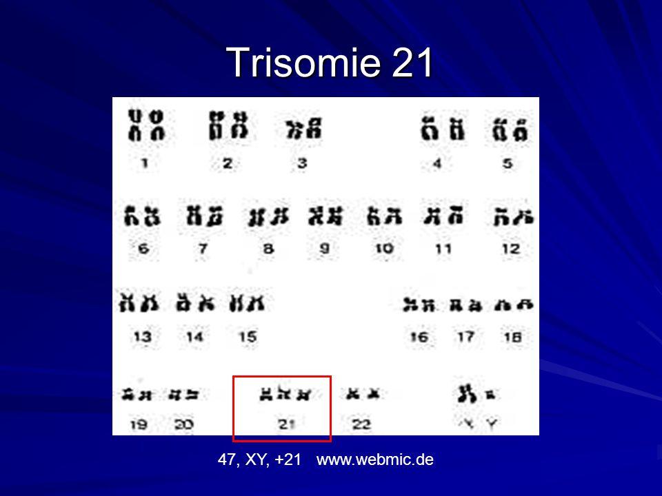 Trisomie 21 47, XY, +21 www.webmic.de