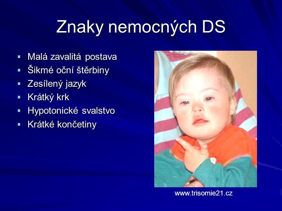 Znaky nemocných DS Malá zavalitá postava Šikmé oční štěrbiny