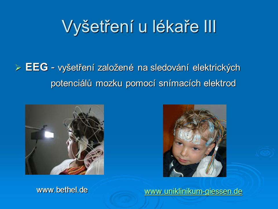 Vyšetření u lékaře III EEG - vyšetření založené na sledování elektrických. potenciálů mozku pomocí snímacích elektrod.