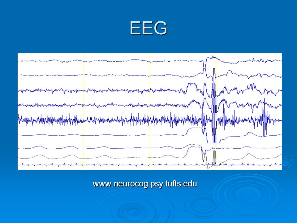 EEG www.neurocog.psy.tufts.edu