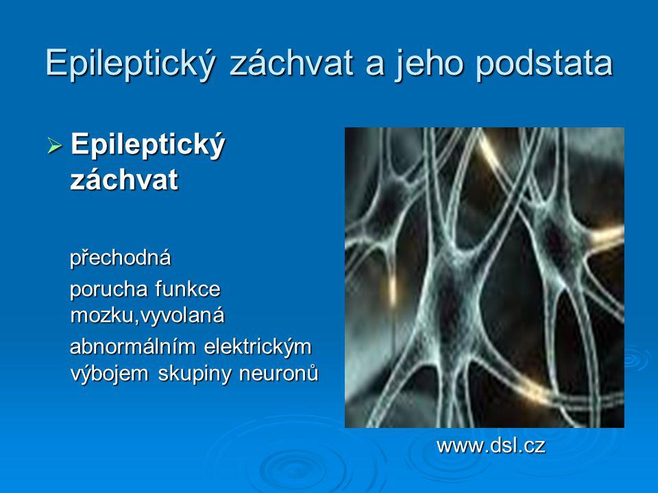 Epileptický záchvat a jeho podstata