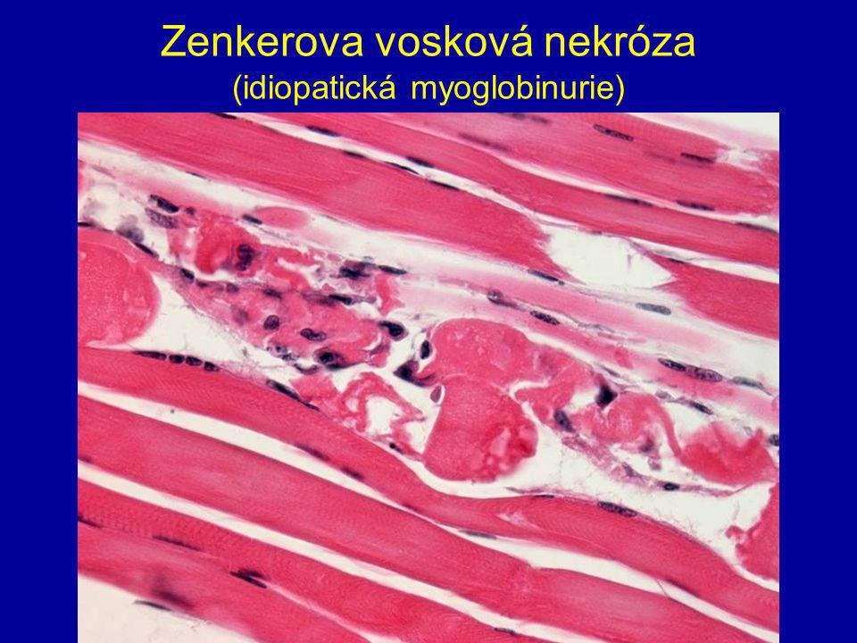 Zenkerova vosková nekróza (idiopatická myoglobinurie)