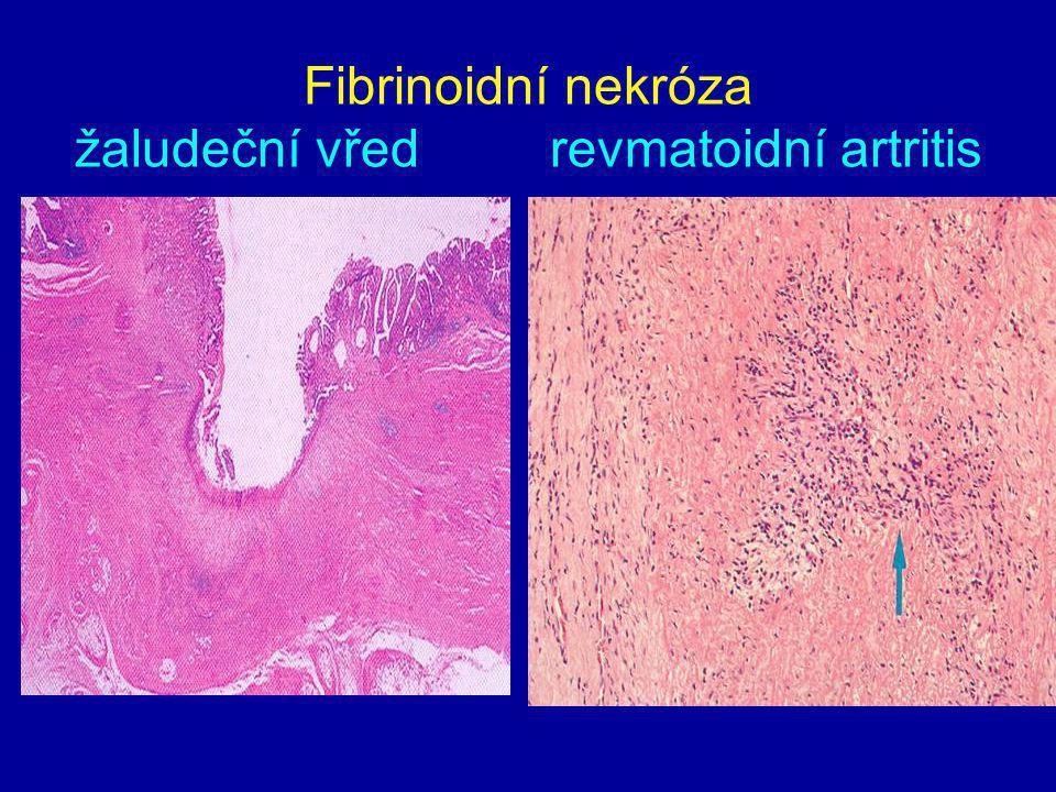 Fibrinoidní nekróza žaludeční vřed revmatoidní artritis