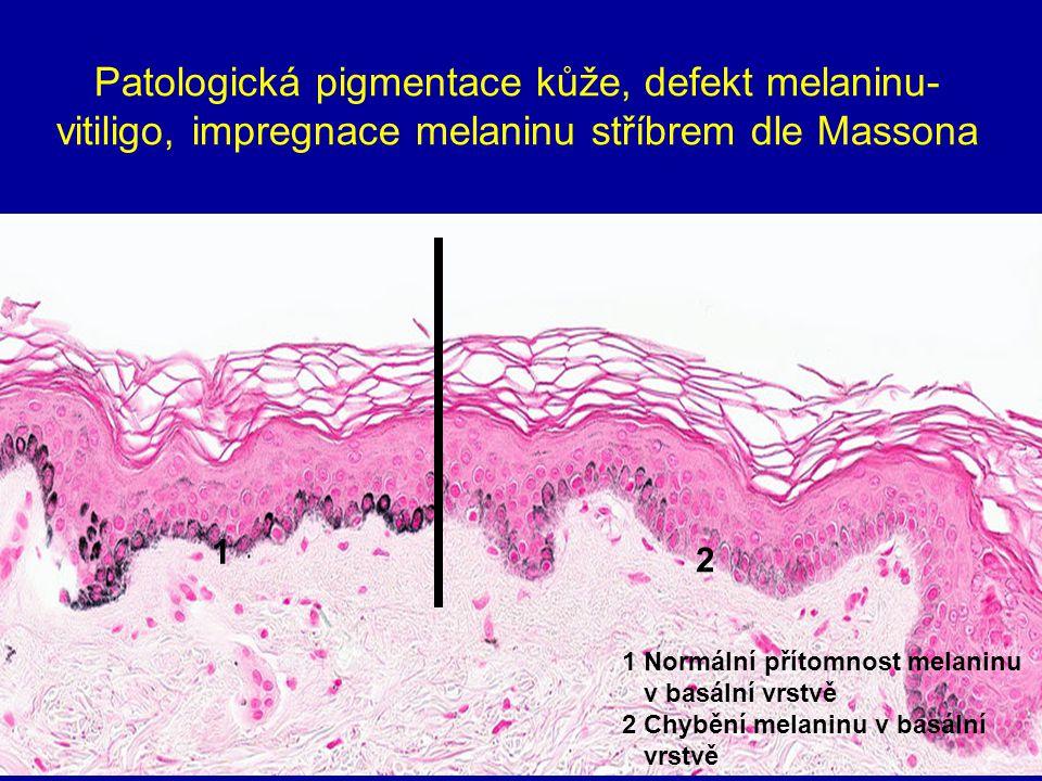 Patologická pigmentace kůže, defekt melaninu-vitiligo, impregnace melaninu stříbrem dle Massona