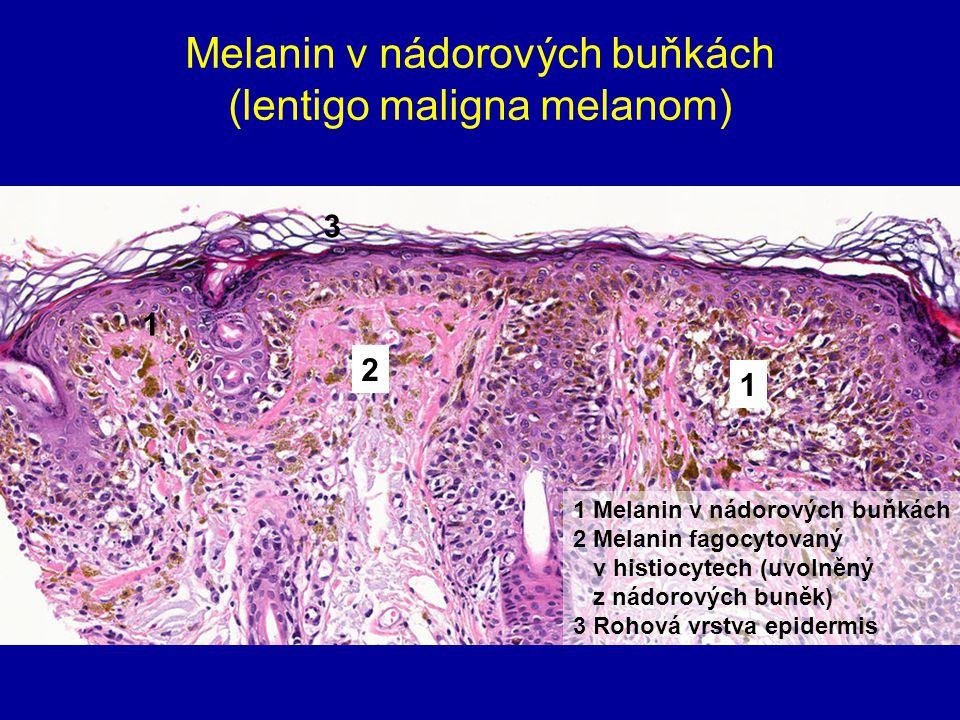 Melanin v nádorových buňkách (lentigo maligna melanom)