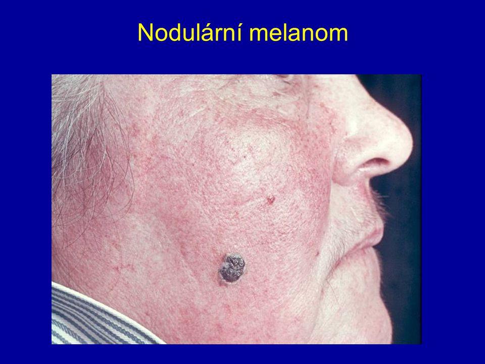 Nodulární melanom