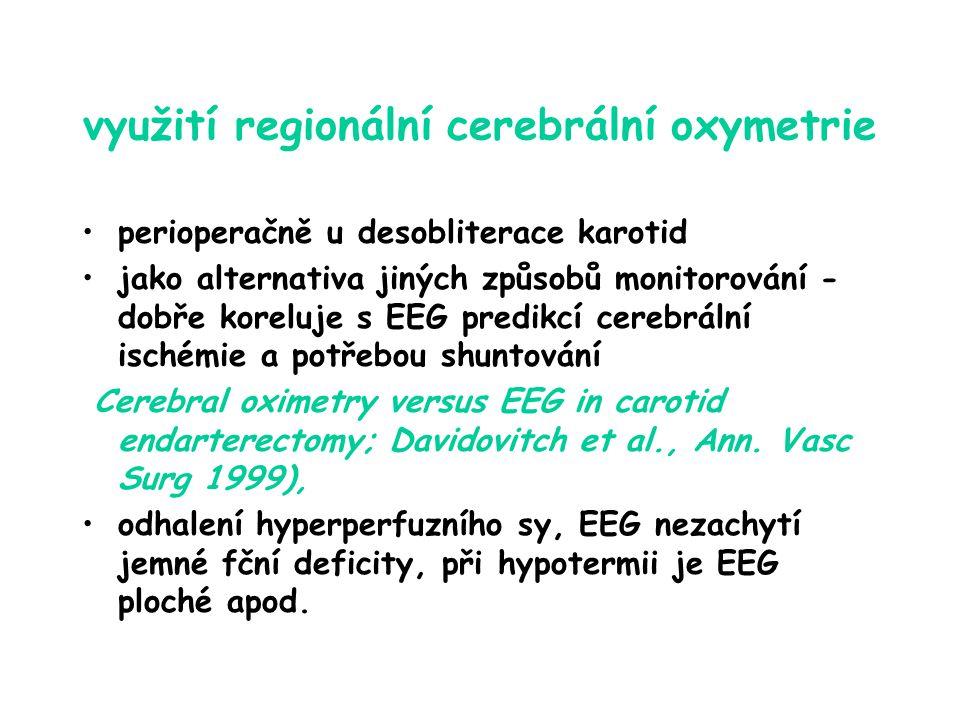 využití regionální cerebrální oxymetrie