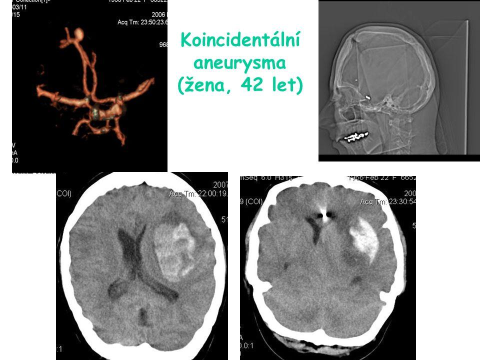 Koincidentální aneurysma (žena, 42 let)