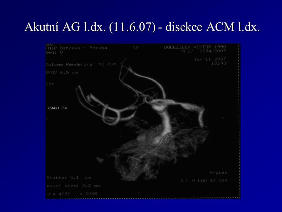 Akutní AG l.dx. (11.6.07) - disekce ACM l.dx.
