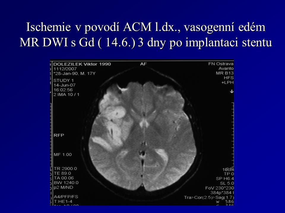 Ischemie v povodí ACM l. dx. , vasogenní edém MR DWI s Gd ( 14. 6