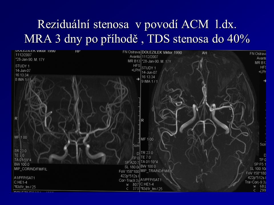 Reziduální stenosa v povodí ACM l. dx