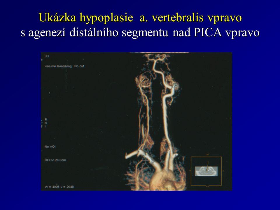 Ukázka hypoplasie a. vertebralis vpravo s agenezí distálního segmentu nad PICA vpravo