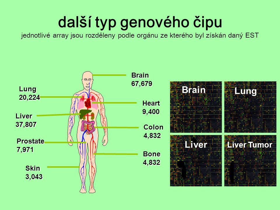další typ genového čipu jednotlivé array jsou rozděleny podle orgánu ze kterého byl získán daný EST