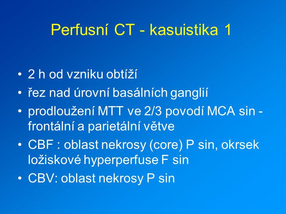 Perfusní CT - kasuistika 1