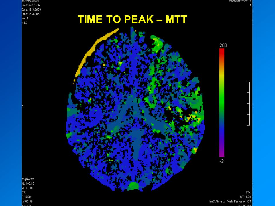 TIME TO PEAK – MTT