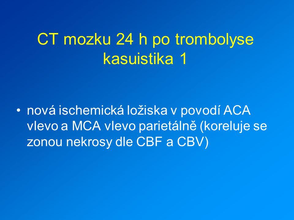 CT mozku 24 h po trombolyse kasuistika 1