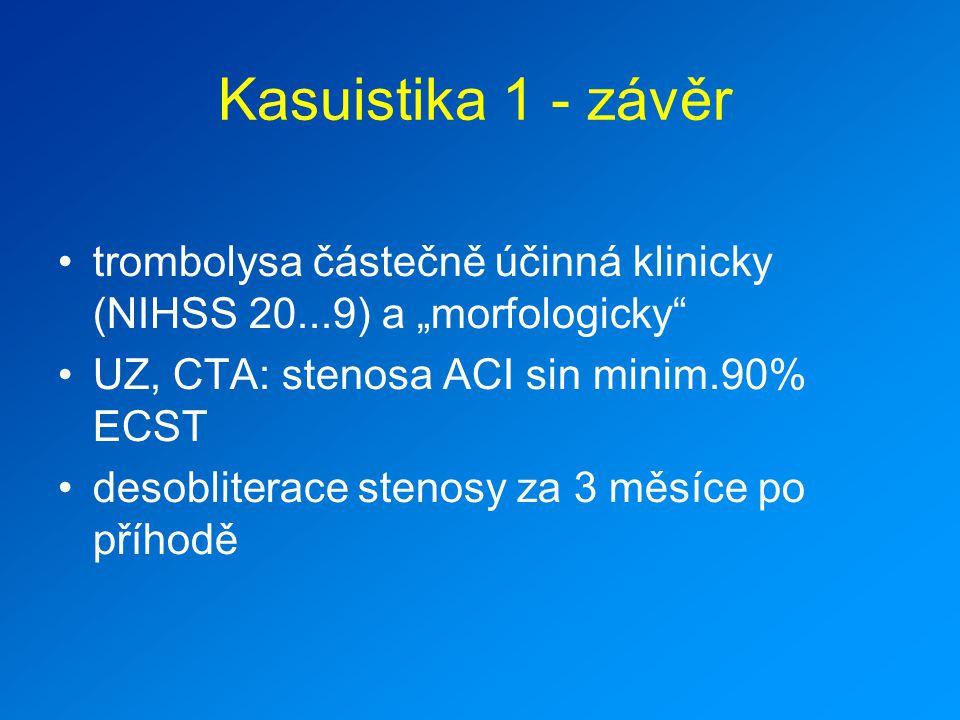 """Kasuistika 1 - závěr trombolysa částečně účinná klinicky (NIHSS 20...9) a """"morfologicky UZ, CTA: stenosa ACI sin minim.90% ECST."""
