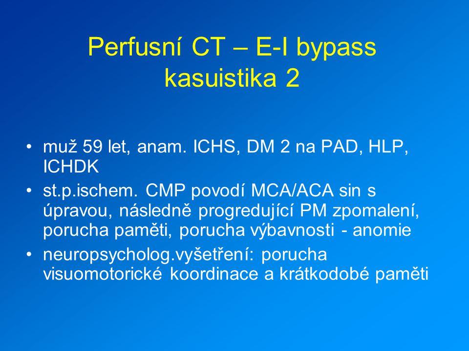 Perfusní CT – E-I bypass kasuistika 2