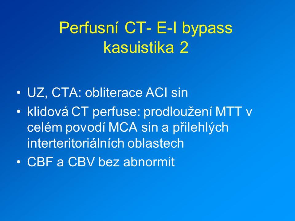 Perfusní CT- E-I bypass kasuistika 2