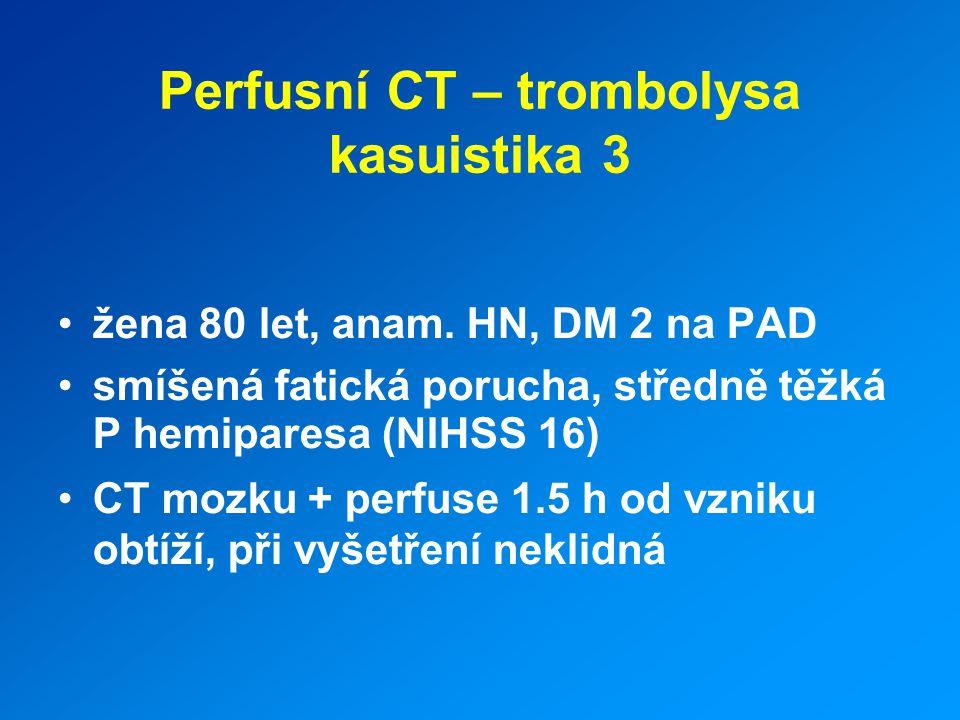 Perfusní CT – trombolysa kasuistika 3