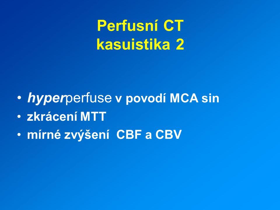 Perfusní CT kasuistika 2