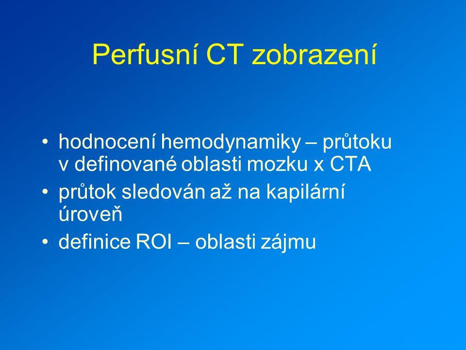 Perfusní CT zobrazení hodnocení hemodynamiky – průtoku v definované oblasti mozku x CTA. průtok sledován až na kapilární úroveň.