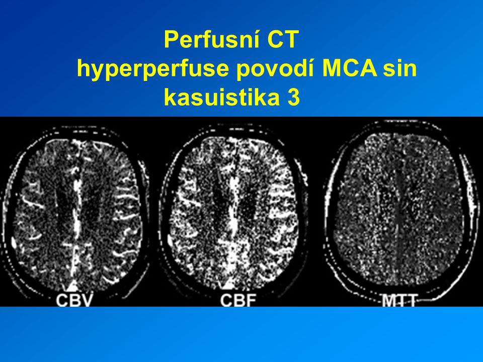 Perfusní CT hyperperfuse povodí MCA sin kasuistika 3