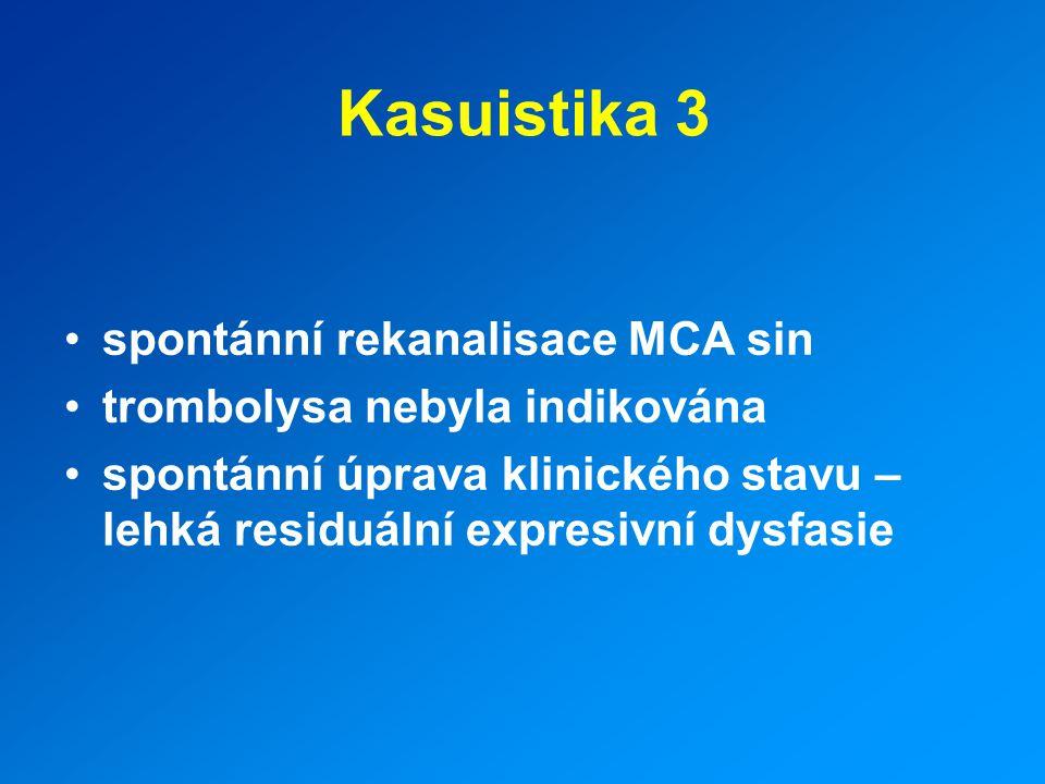 Kasuistika 3 spontánní rekanalisace MCA sin