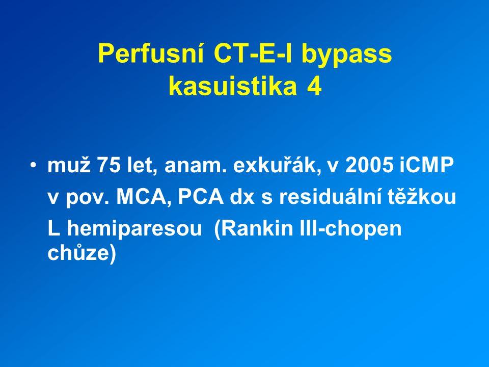 Perfusní CT-E-I bypass kasuistika 4