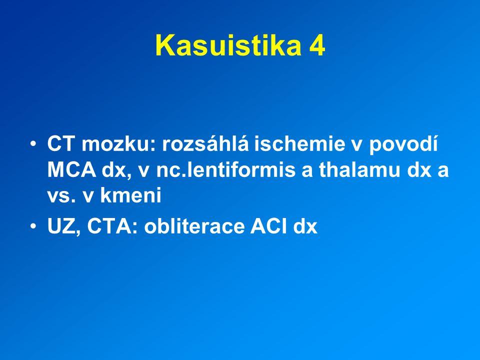 Kasuistika 4 CT mozku: rozsáhlá ischemie v povodí MCA dx, v nc.lentiformis a thalamu dx a vs. v kmeni.