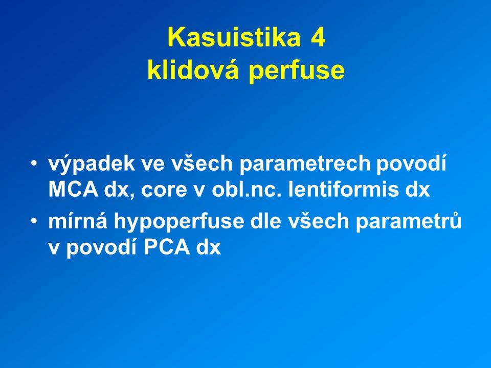 Kasuistika 4 klidová perfuse