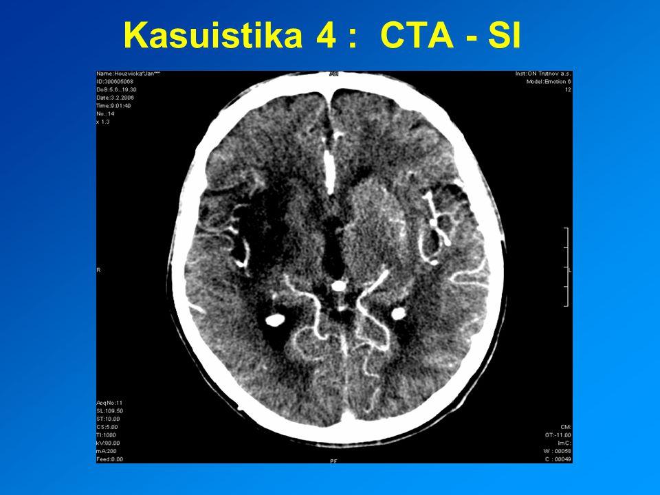 Kasuistika 4 : CTA - SI
